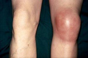 Сильная отечность коленного сустава