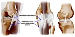 Медиальная боковая связка коленного сустава