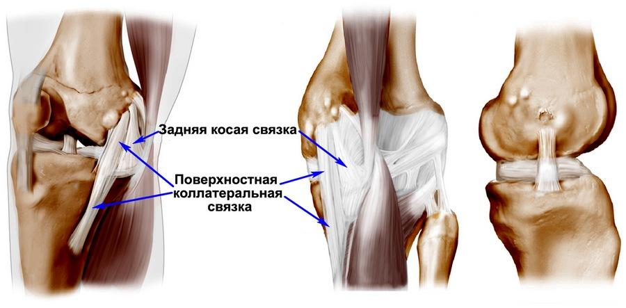 Повреждение коллатеральных связок коленного сустава: медиальной и ...