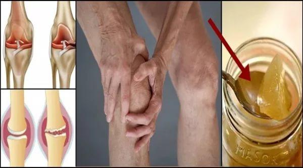 Лечение остеоартроза коленного сустава народными средствами