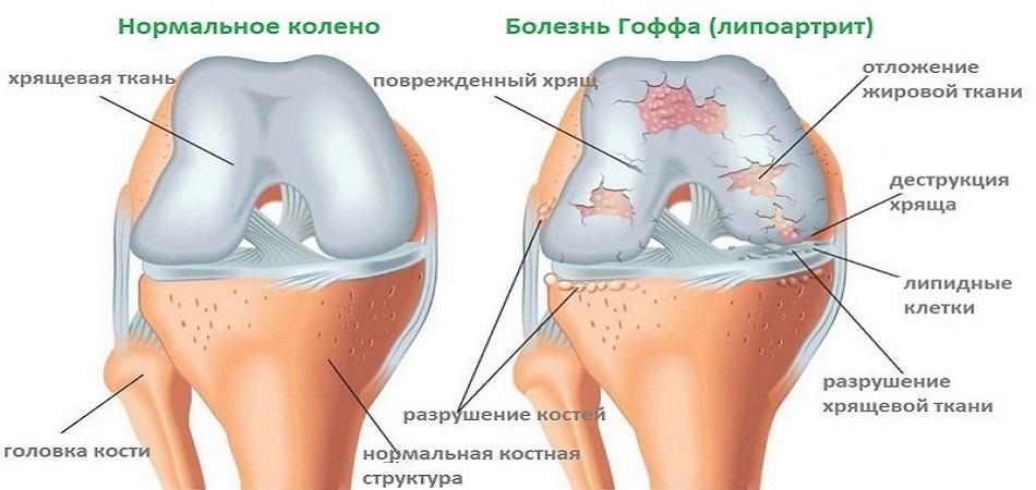 болит суставы рук и позвоночника