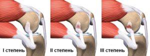 Три степени тяжести разрыва коленного мениска