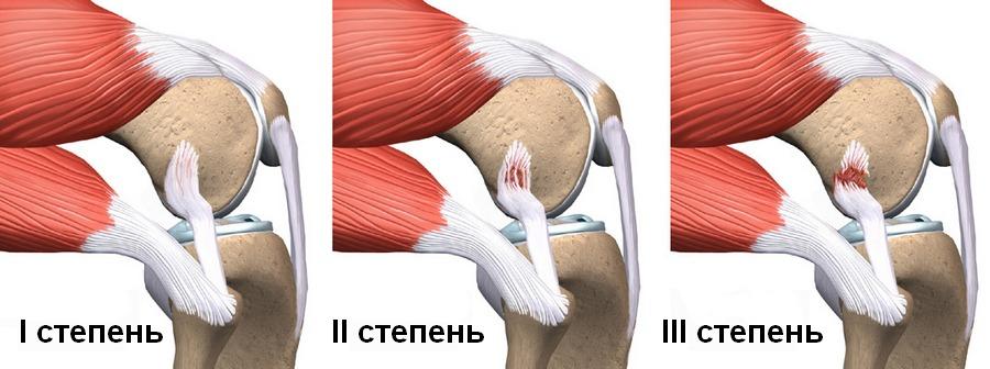 Как долго болит нога после растяжения связок колена