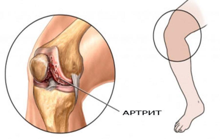 Полиартрит коленного сустава симптомы и лечение народными средствами