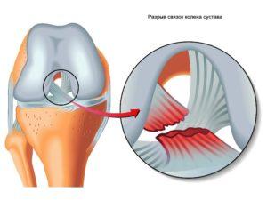 Изображение - Гемартроз коленного сустава код по мкб 10 Gemartroz-kolennogo-sustava-1-300x225