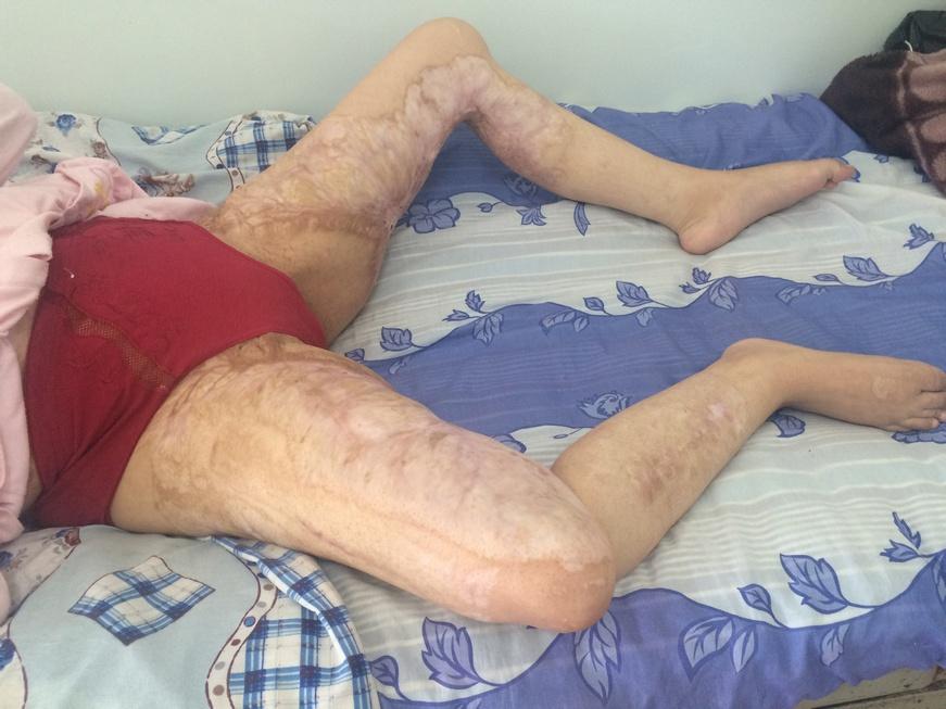 Лфк контрактуры коленного сустава как ставить дипроспан при болях в суставах