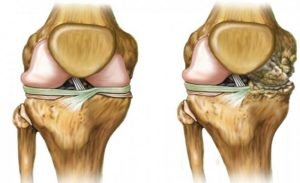 Костный экзостоз коленного сустава