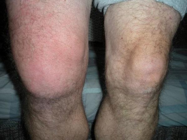 Лечение препателлярного бурсита колена методы диагностики и терпаии народные средства