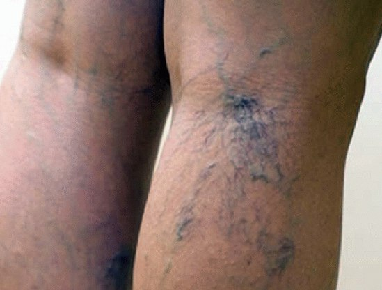 Болит вена под коленом сзади