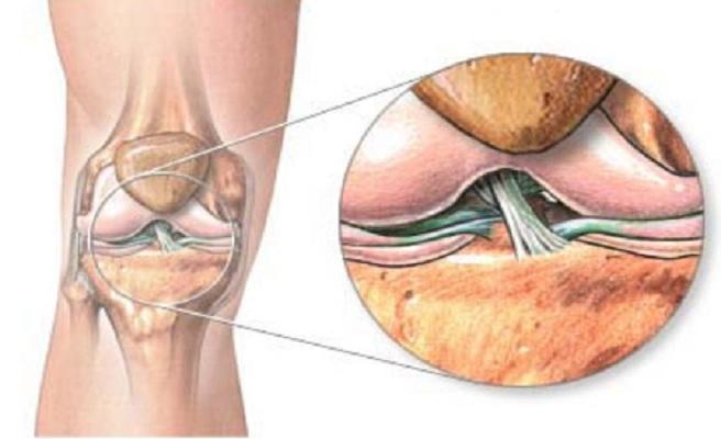 Лигаментоз крестовидных крестообразных и собственных связок коленного сустава