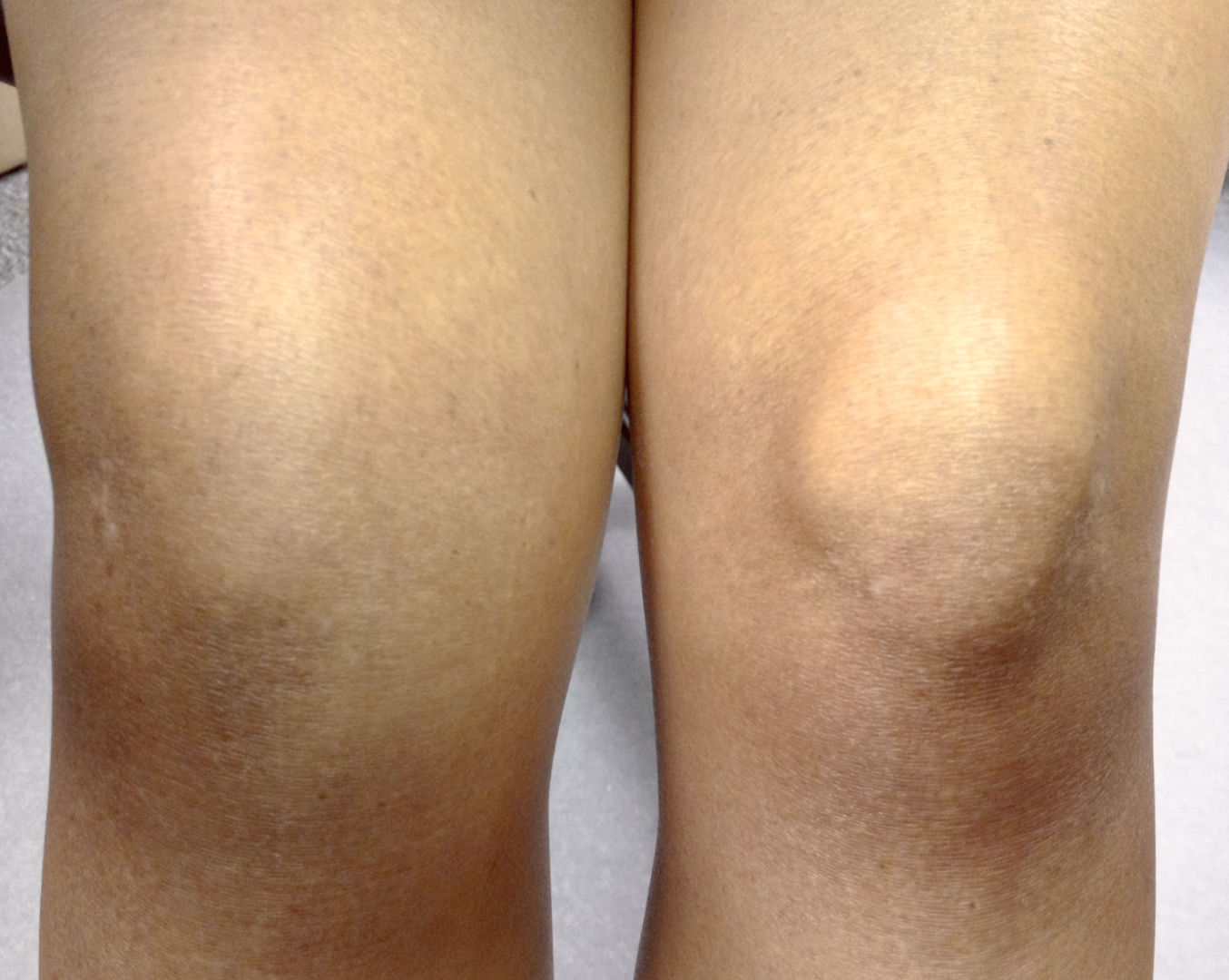 Припухло колено и болит при сгибании