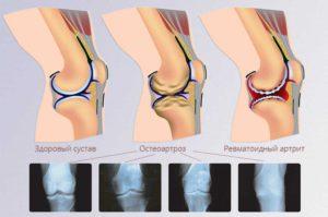Разновидности артрита коленного сустава