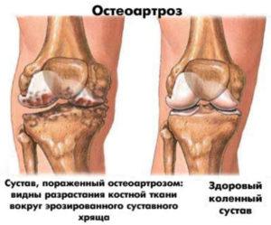 Доа коленных суставов мкб