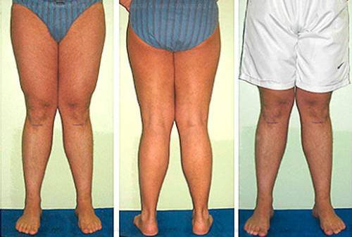 где эффективно лечат суставы в омске