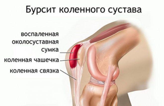 Какие бывают болезни коленного сустава симптомы и лечение заболеваний
