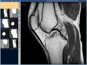Как лечить остеохондроз коленного сустава причины и профилактика заболевания