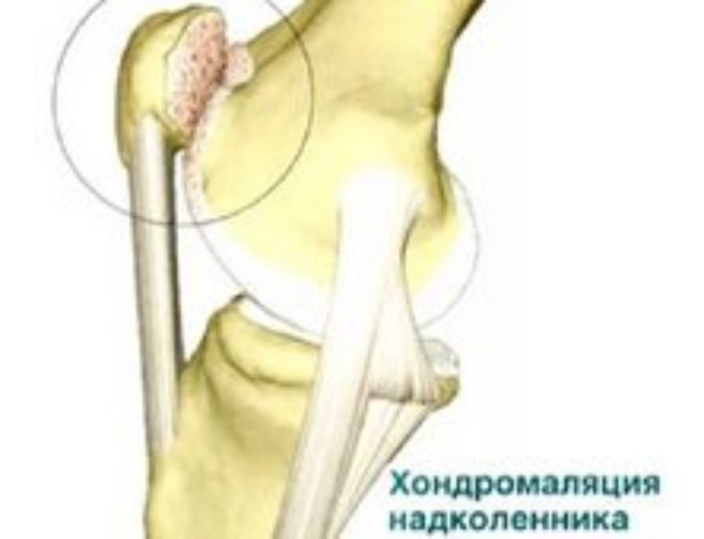 эффективные средства для лечения коленного сустава