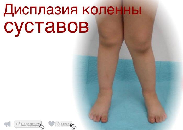 Дисплазия коленного сустава народными средствами сустав что это