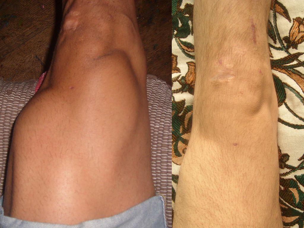 Степени развития и лечение гемартроза коленного сустава в домашних условиях
