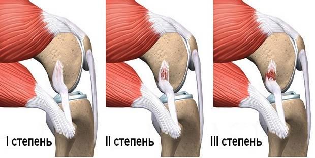 Изображение - Растяжение связок коленного сустава код мкб 10 img2a0hz-24
