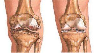 Субхондральный склероз суставной поверхности большеберцовой кости