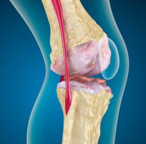 Лигаментит связок коленного сустава