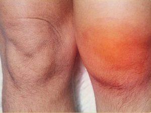 Отек и покраснение колена