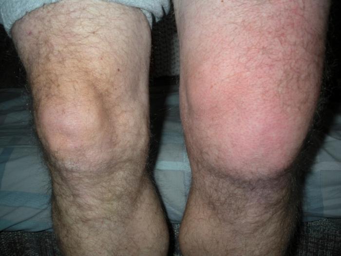 симптомы ревматоидного артрита пятки