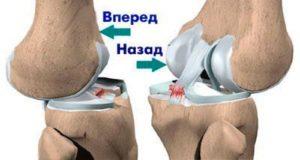 Менисцит коленного сустава что такое диагностика и лечение