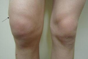 Изображение - Гемартроз коленного сустава код по мкб 10 silniy-otek-sustava-300x202