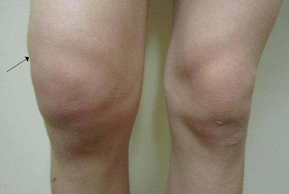 Посттравматический гемартроз коленного сустава по мкб 10 воспалился сустав запястье