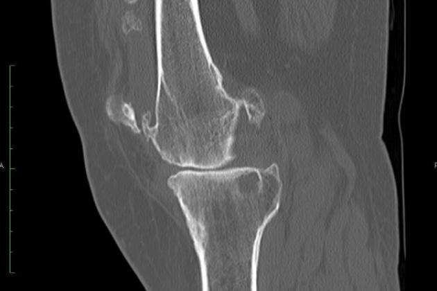 Хондроматоз коленного сустава - симптомы и лечение