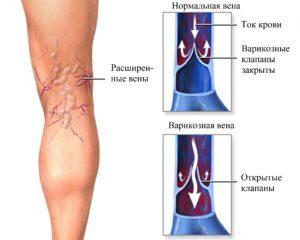 Тромбоз подколенной вены. Что делать если болит и набухла вена на ноге под коленом сзади