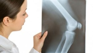 Асептический некроз коленного сустава