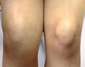 Отек костного мозга коленного сустава и позвоночника лечение