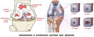 Разница между артрозом и коксартрозом тазобедренного сустава