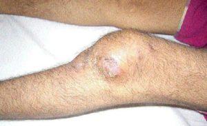 Изображение - Туберкулез коленного сустава симптомы 1448414-300x183