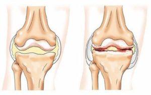 Изображение - Травма коленного сустава код по мкб 10 1510525292_reaktivnyy-revmatoidnyy-artrit-300x188
