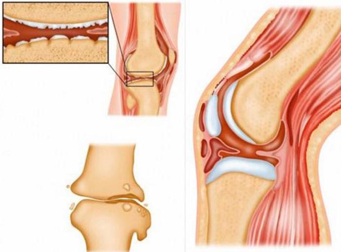 Остеомиелит коленного сустава распухло колено и болит чем лечить мазь