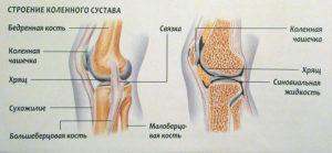 Лечение вывиха коленного сустава: как вправить, причины и признаки, код МКБ-10. Симптомы вывиха коленного сустава и методы восстановления