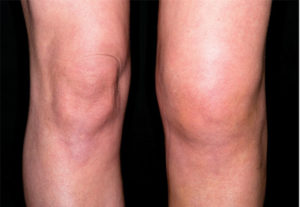 Отложение солей в коленном суставе лечение