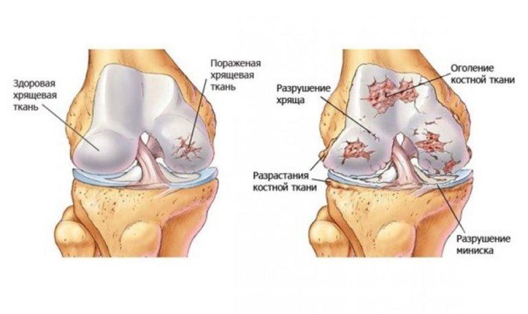 Какая норма толщины гиалинового хряща в коленном суставе лечение косартроза тазобедренного сустава