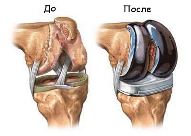 Эндопротез коленного сустава инвалидность дается упражнения при боль в тазобедренном суставе