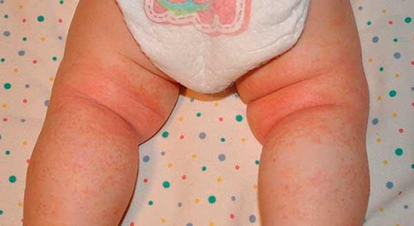 Красные шершавые пятна под коленками у ребенка: симптомы, причины и лечение