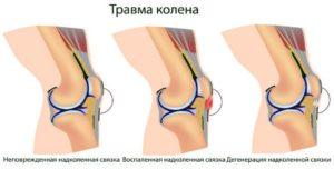 Мкб повреждение коленного сустава