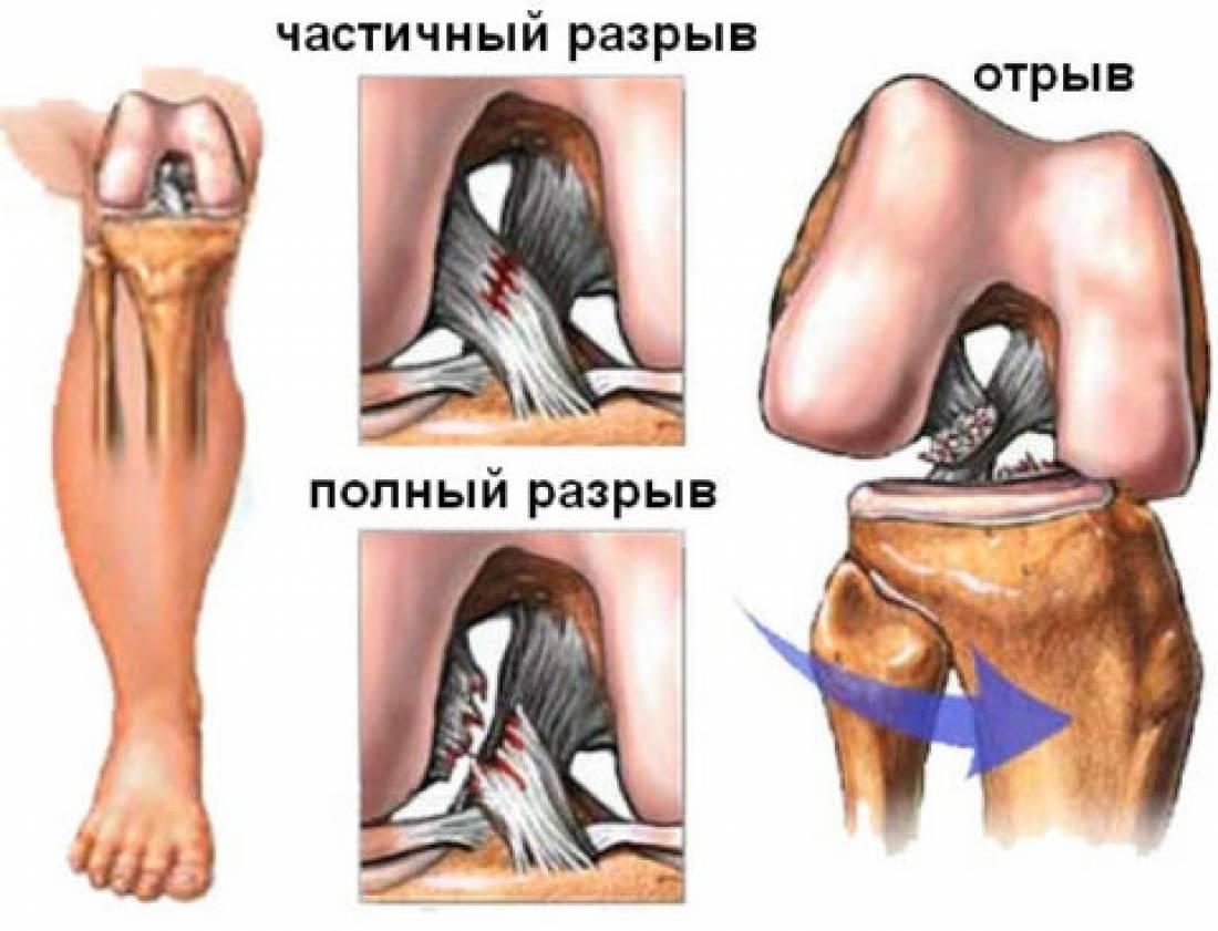 Осложнения травмы коленного сустава ревматизм суставов симптомы лечение фото разновидности