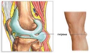 Гигрома подколенной ямки: симптомы и лечение