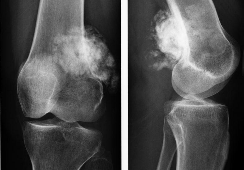 Остеома коленного сустава операция фирмы-производители протезов тазобедренных суставов