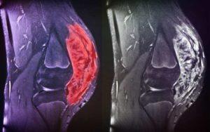 Почему на бедре появилась вмятина впадина или провал в мышцах