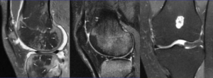 Изображение - Контузия костного мозга коленного сустава Snimok-ekrana-2016-04-25-v-23.30.36-1024x378-300x111